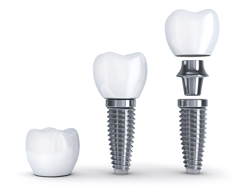 Implant Dentis Clearwater & Tampa, FL