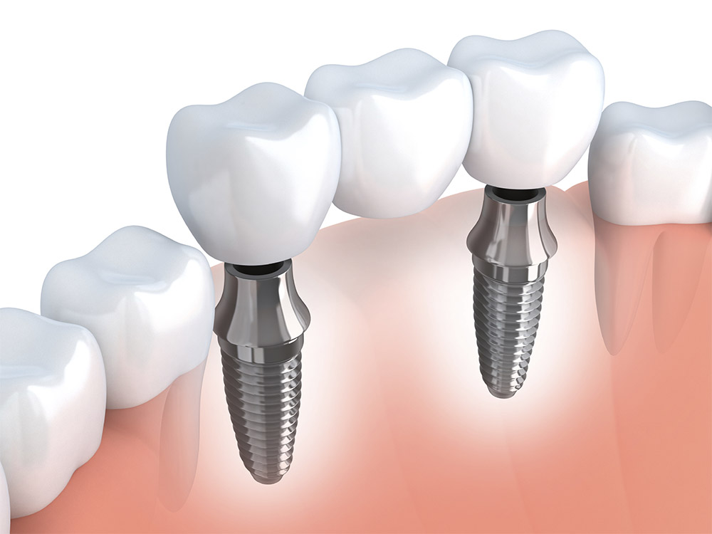 Implant Dentist Tampa & Clearwater