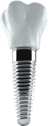 Dental Implants Tampa