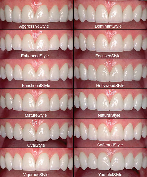Veneers Tampa Clearwater Fl Nusmile Dental